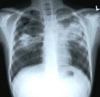 X-ray of the lungs of a patient with pulmonary tuberculosis