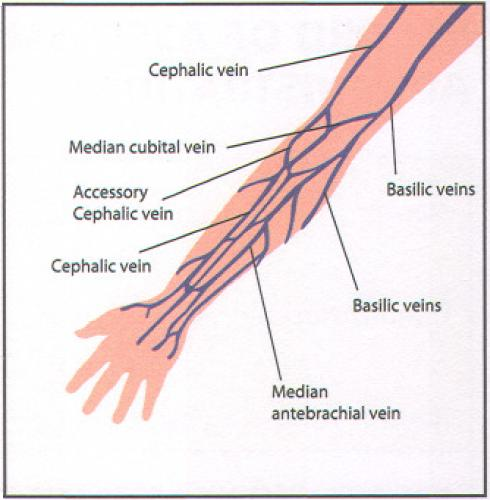 how to write cannulation and injection, Cephalic Vein