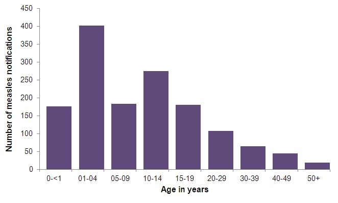 measles notifications by age 01 July 2013