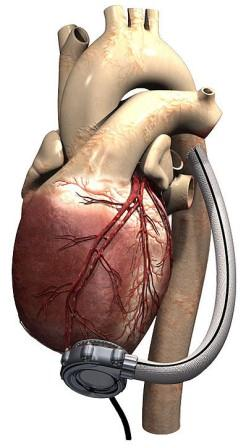 Artificial heart pump �a viable alternative to transplant�
