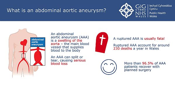 5 Successful Years of the Wales Abdominal Aortic Aneurysm Screening Programme