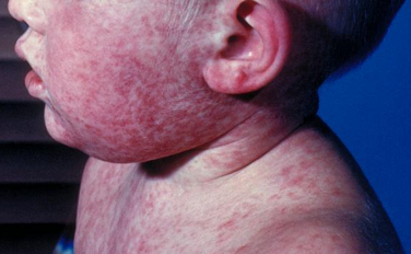 measles rash