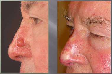 Swansea Bay Chc Abmu Plastic Surgeons Develop Specialist Laser Treatment For Skin Cancer